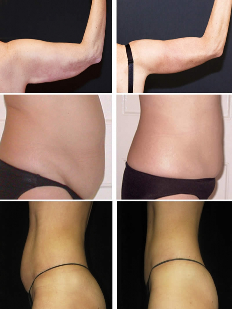 lipo light before and after